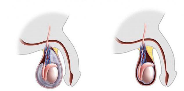 Bolestivé semeníky na dotyk tabletky na zlepšení erekce
