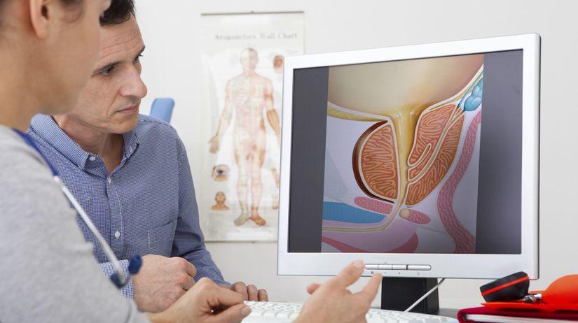 Urolog problémy s erekcí