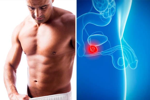 Problémy s prostatou výživové doplňky bez předpisu